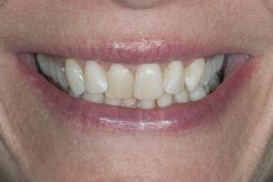 Jackie Laser Teeth Whitening S B4 5937