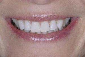 Jackie Laser Teeth Whitening S Post 8384 2