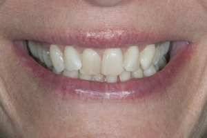 Jackie Laser Teeth Whitening S B4 5937