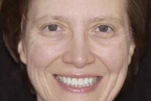 Jackie Teeth Whitening F2 Post 2192