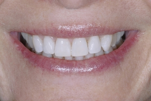 Jackie Teeth Whitening S Post 8384 2