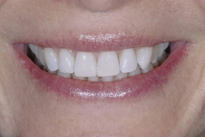 Jackie Invisalign S Post 8384 2