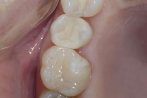 Jackie X Crowns Back Teeth After