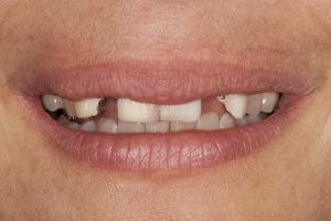 Jacqui-Implant-Crown-S-Post-_DSC0060