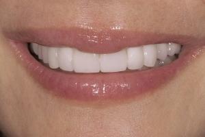 Jacqui-Implant-Crown-S-Post_DSC0038