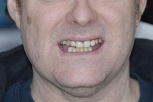 James Implant Temporary F  Before 9996 b