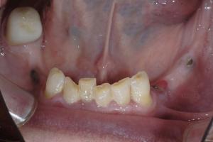 James-Implant-Temporary-X9c-0796