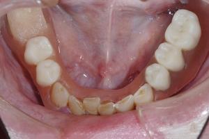 James-Implant-Temporary-X9b-0795