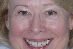 Jan Teeth Whitening F2 After 2298