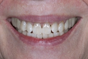 Jan S Crowns Back Teeth After 6004