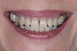 Jan S Crowns Back Teeth  Before 5041