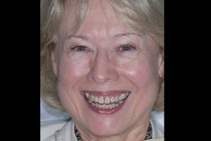 Jan Crowns Back Teeth F  Before 5043