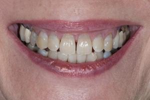 Jan S Crowns Back Teeth  Before 5041