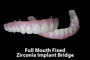 Jane F Fixed Zirconia I Bridge 2034