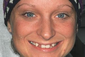 Janet Implant Crown F2  Before J&M001