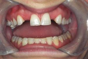 Janet Implant Crown R B4 J&M003