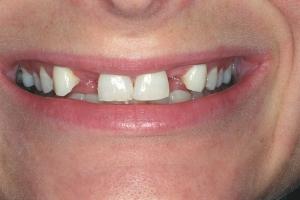 Janet Implant Crown S B4 J&M002