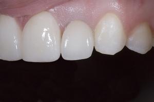 Janet Implant Crown X 1 1 L