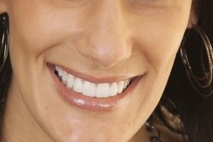 Jeanne Implant Crown F2 Post 0575