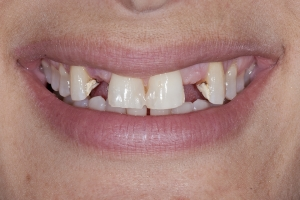 Jeanne Implant Crown S  Before 5481