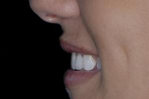 Jeanne Implant Crown FP Post 20760