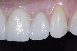 Jeanne Implant Crown Z2 Zirc Coping Lf Side_DSC0747