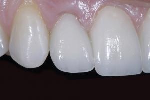 Jeanne Implant Crown Z2 Zirc Coping Rt Side_DSC0753
