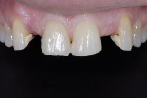 Jeanne Implant Crown z1 B4 5484