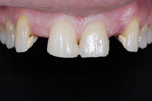 Jeanne-One-Piece-Implant-X-2-5484