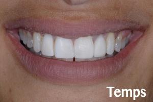 Jeanne Implant Temporary S B5 6534