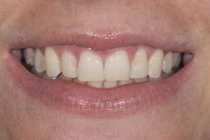 Jessica Laser Teeth Whitening S B4 0010