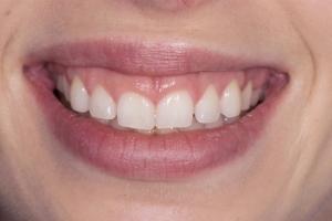 Jessica Gummy Smile S B4 Gum Lift