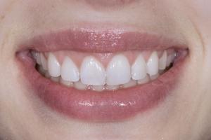 Jessica Gummy Smile S Post 036