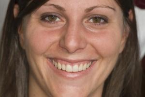 Jessica Veneers & Gum Lift F B4 014