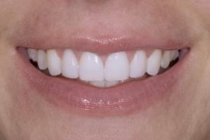 Jessica Veneers & Gum Lift S Post 0049