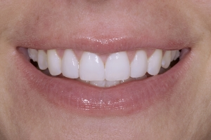Jessica Veneers & Gum Lift S Post 0049