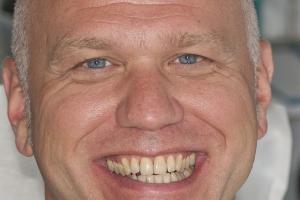 Jim Laser Teeth Whitening F2 B4 0169