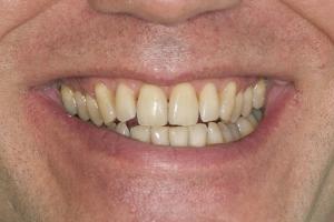 Jim Laser Teeth Whitening S  Before 0169