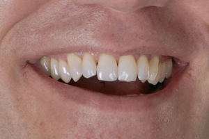 Jim Laser Teeth Whitening S After 6942