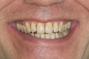 Jim Laser Teeth Whitening S  Before 0169