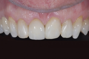 Jim-X4-Zirc-Zirconia-Post-After-9853
