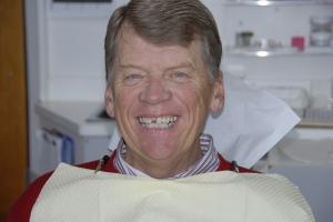 Jim F Zirconia  Before 7174