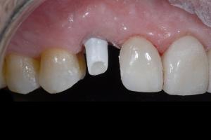 Joe Implant Crown X121 3533