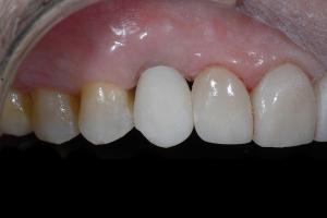 Joe Implant Crown X121b 3534