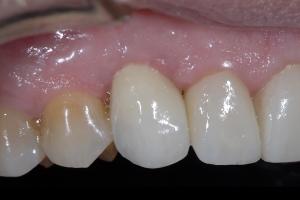 Joe Implant Crown X121c 3648
