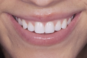 Joe Anna S Composite Veneers After 077