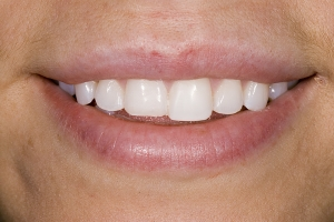 Joe Anna S Composite Veneers  Before 125