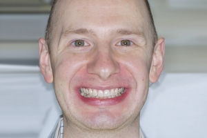 John Invisalign F1  Before