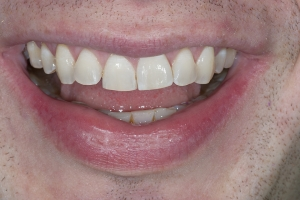John Invisalign S  Before 5157