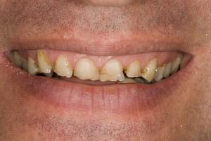 Jordie Gummy Smile S B4 33